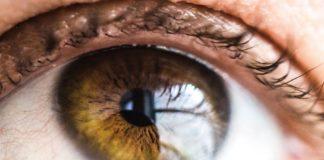 Cataratta e Miopia: istruzioni per conoscerle